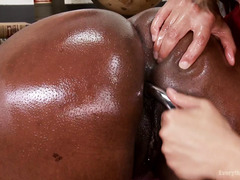 Busty ebony receives sexual healing from brunette doctor for her anal addiction
